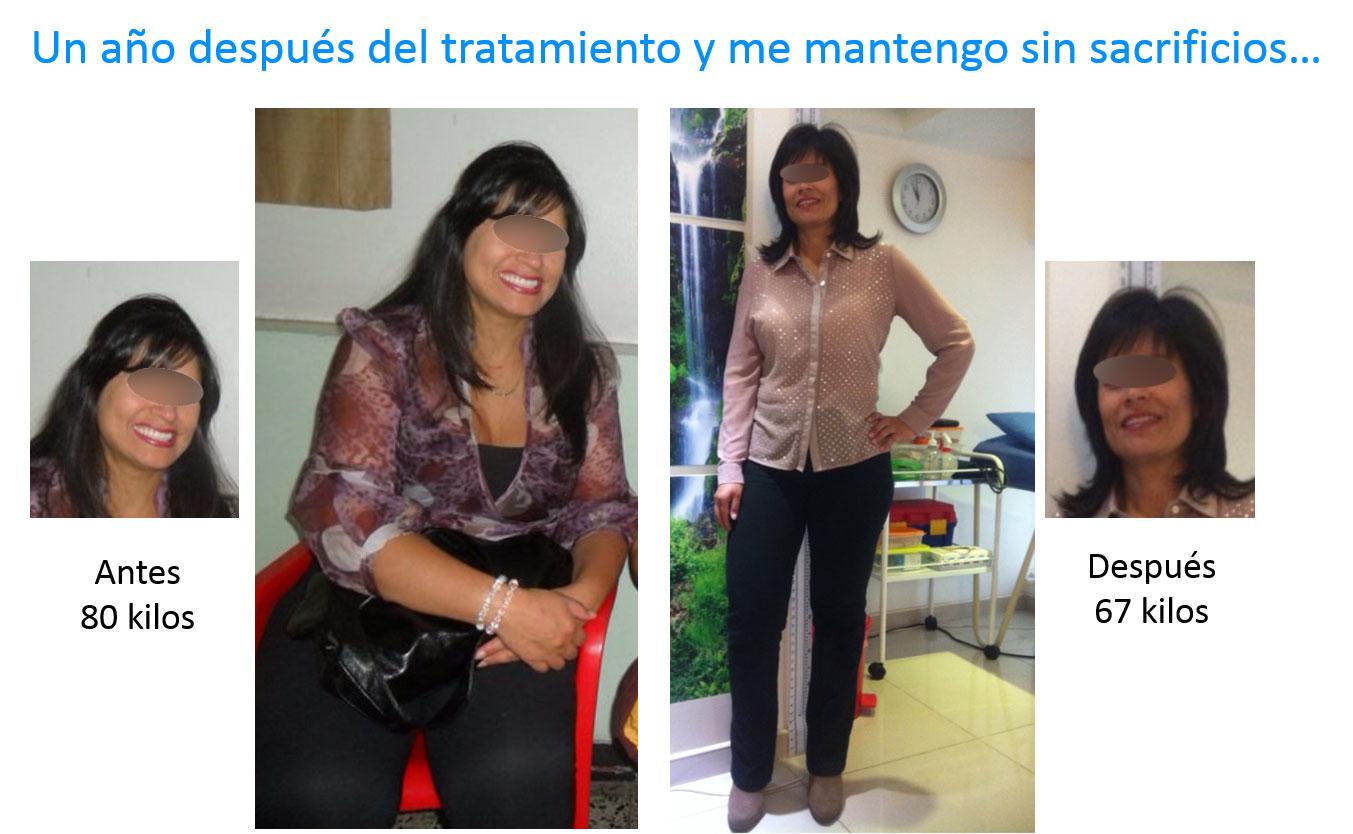 Testimonio-obesidad-2