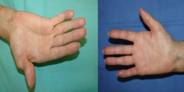 artritis testimonio